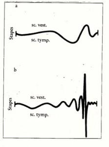 Wanderwelle ohne (oben) und mit intakten äußeren Haarzellen (unten)